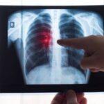 Ученые 4 стран БРИКС оценят влияние COVID-19 на распространение туберкулеза